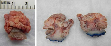 Squamous papilloma lesion,, Squamous papilloma cytology