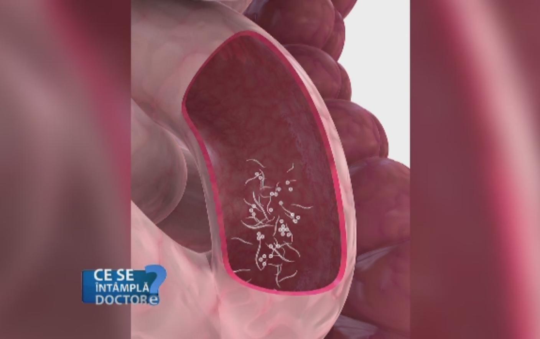 simptomele papilomelor din nazofaringe modul de tratare picături de helmint pentru oameni
