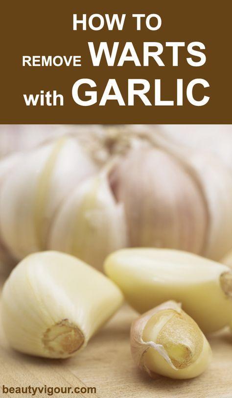 Wart on foot garlic, Plantar wart home remedy garlic - Dictionar Expresii in Limba Engleza