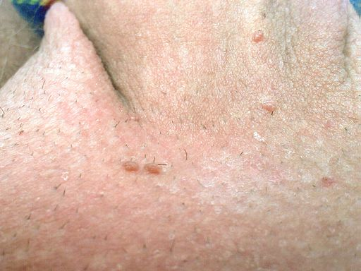 Warze hpv- infektion, Hpv warzen therapie - parohiaorsova.ro