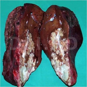 Cancerul de stomac – depistat adesea in stadii avansate   csrb.ro