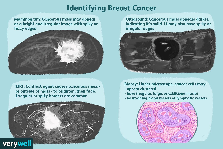 benign tumor - Traducere în română - exemple în engleză | Reverso Context