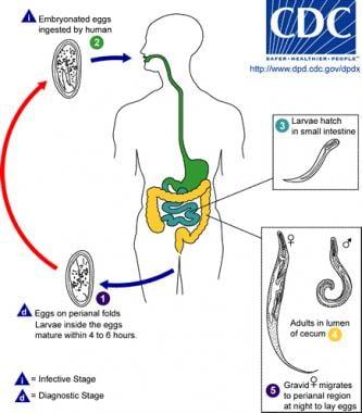 papilloma invertito sintomi coagularea undelor radio a negilor genitali este