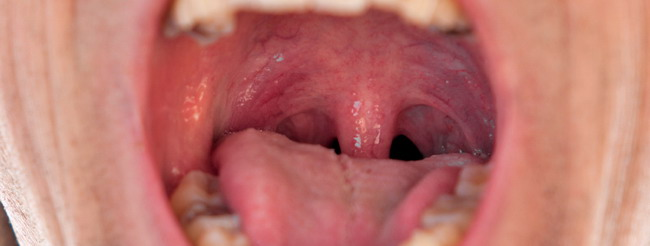 Papiloma cancer boca