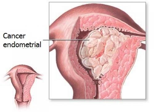 cancer endometru simptome