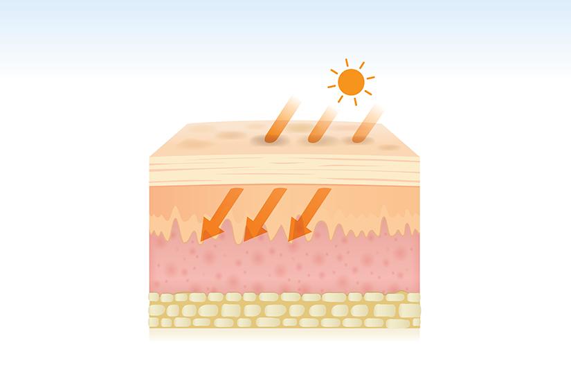 cancerul de piele recidiveaza
