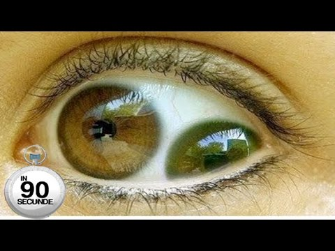 Paraziți în tratamentul ochiului uman - Știința Arcadia