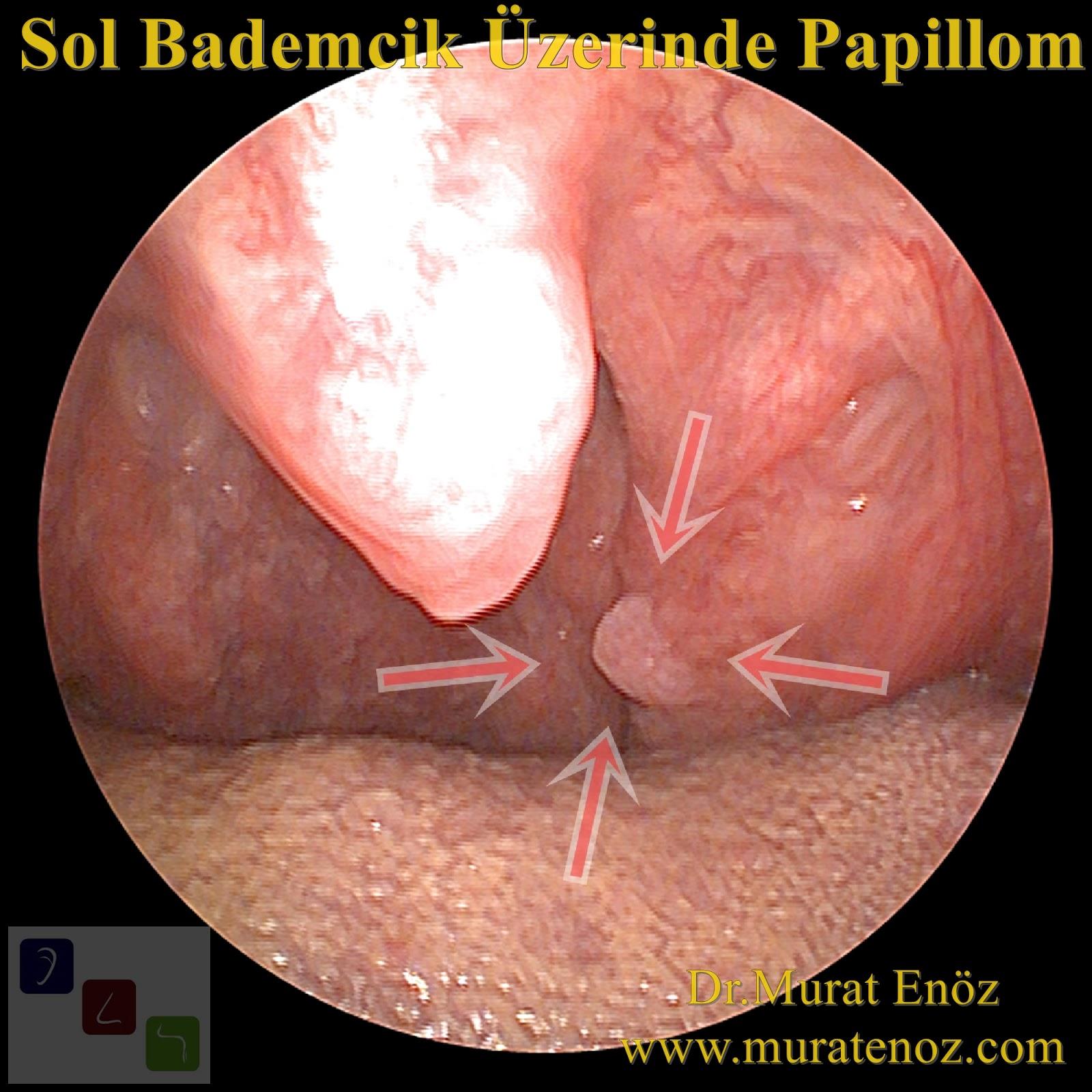 Human papilloma virus enfeksiyonu nedir