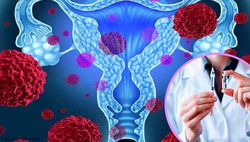 condiloamele deschiderii externe Unguent HPV