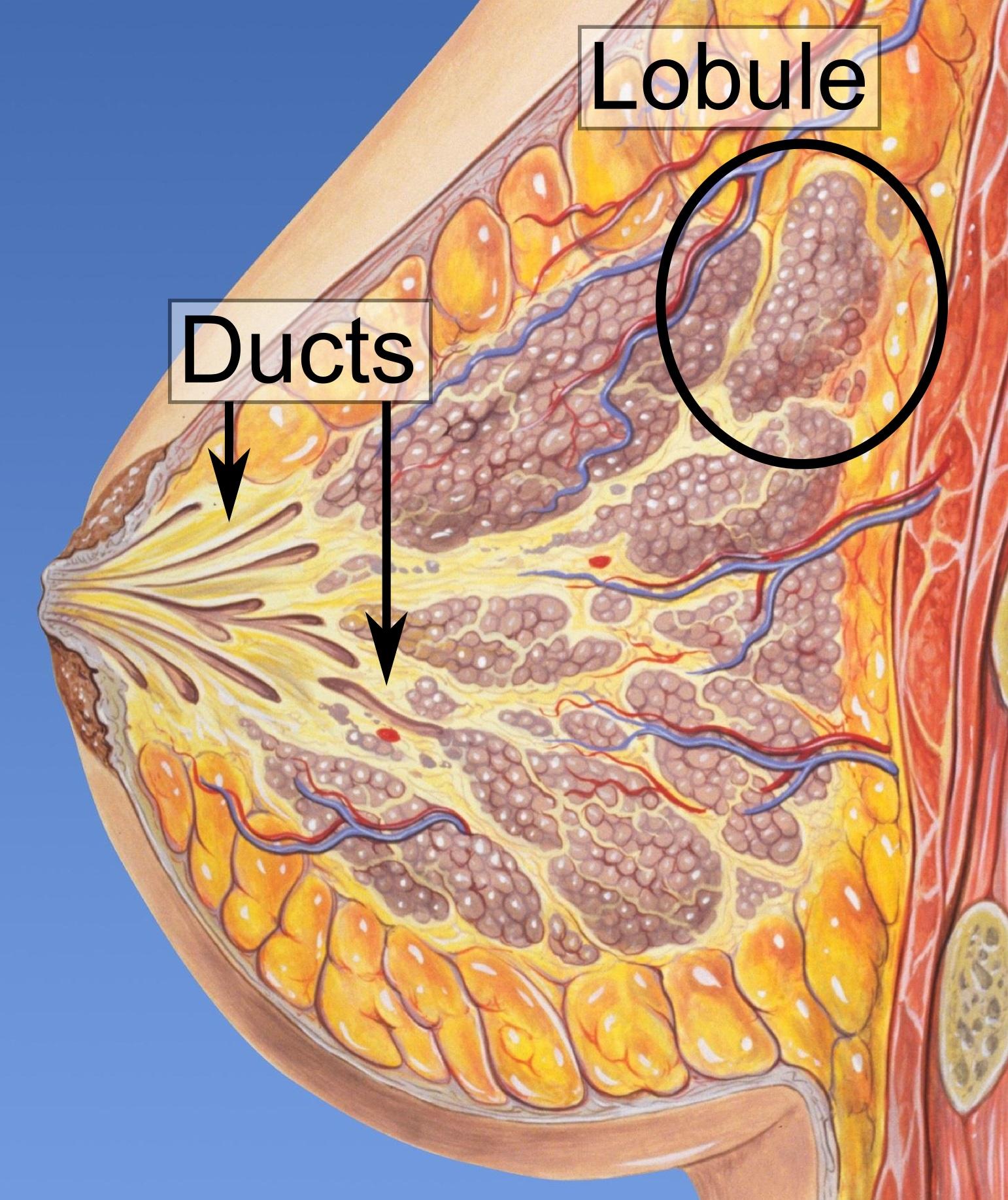 intraductal papilloma def