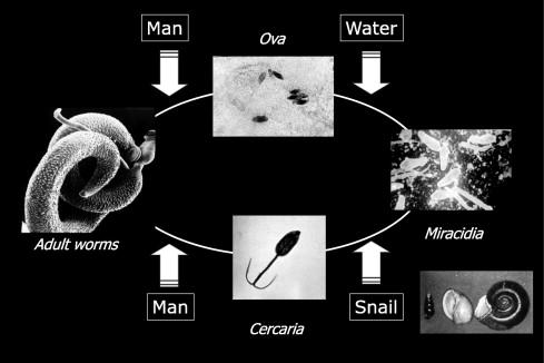 schistosomiasis worm size cancer de prostata operacion