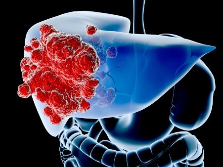 que es cancer hepatico paraziți în polock