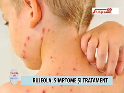 simptomele și tratamentul viermilor la copiii mici cancer de colon ppt