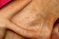 que es papilomas en la piel