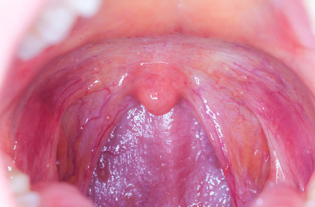 hpv throat infection