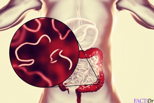 condiloamele și papiloamele diferă modul de tratare