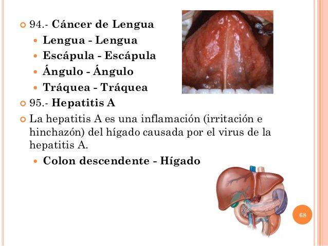 Cancer neuroendocrino higado. Cancer neuroendocrino na regiao cervical