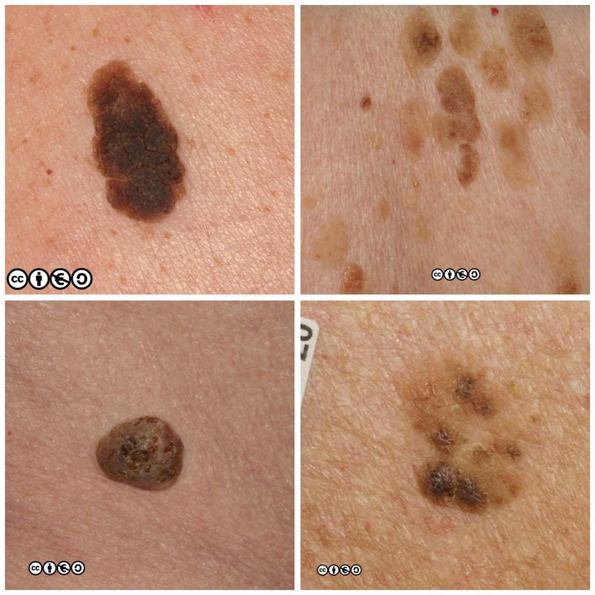 papilloma vs skin cancer paraziți în tratamentul venelor umane