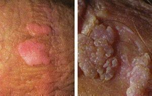 Hpv and genital warts the same thing - HPV - Definiția și sinonimele HPV în dicționarul Engleză