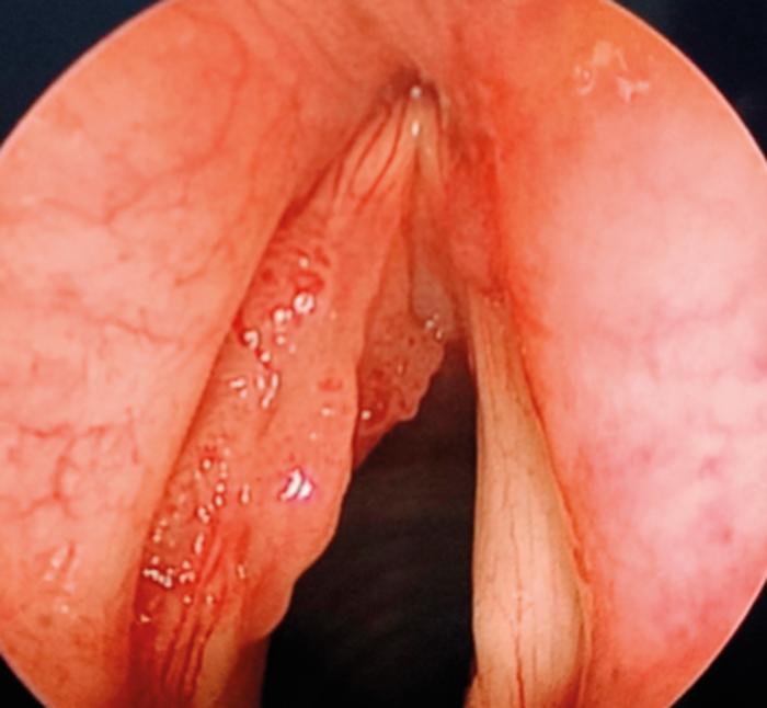 Surgery for laryngeal papilloma, Multiple laryngeal papilloma