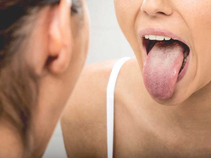 cancer tip of tongue
