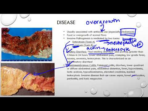 Hpv in gola sintomi, Hpv sintomi gola