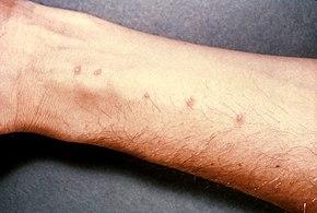 is schistosomiasis a virus or bacteria quadrivalent human papillomavirus definition