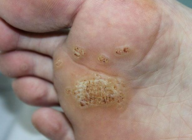hpv genital masculina papillomavirus can cause