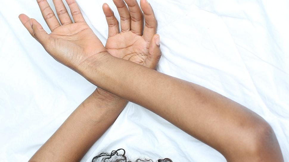 tratamiento para papilomatosis reticulada confluente