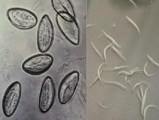 Enterobius vermicularis la gi Oxiuroza (Enterobioza) - Enterobius vermicularis adalah