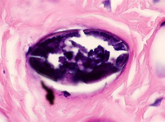 schistosomiasis pathology outlines does hpv virus cause warts