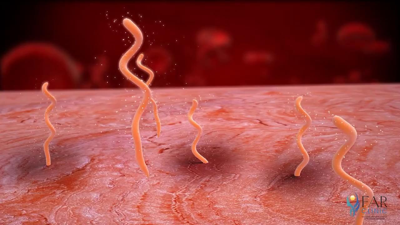 viermi de ouă și protozoare