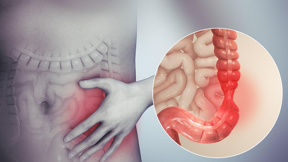 panglică largă cum să aducă durere de stomac condilom