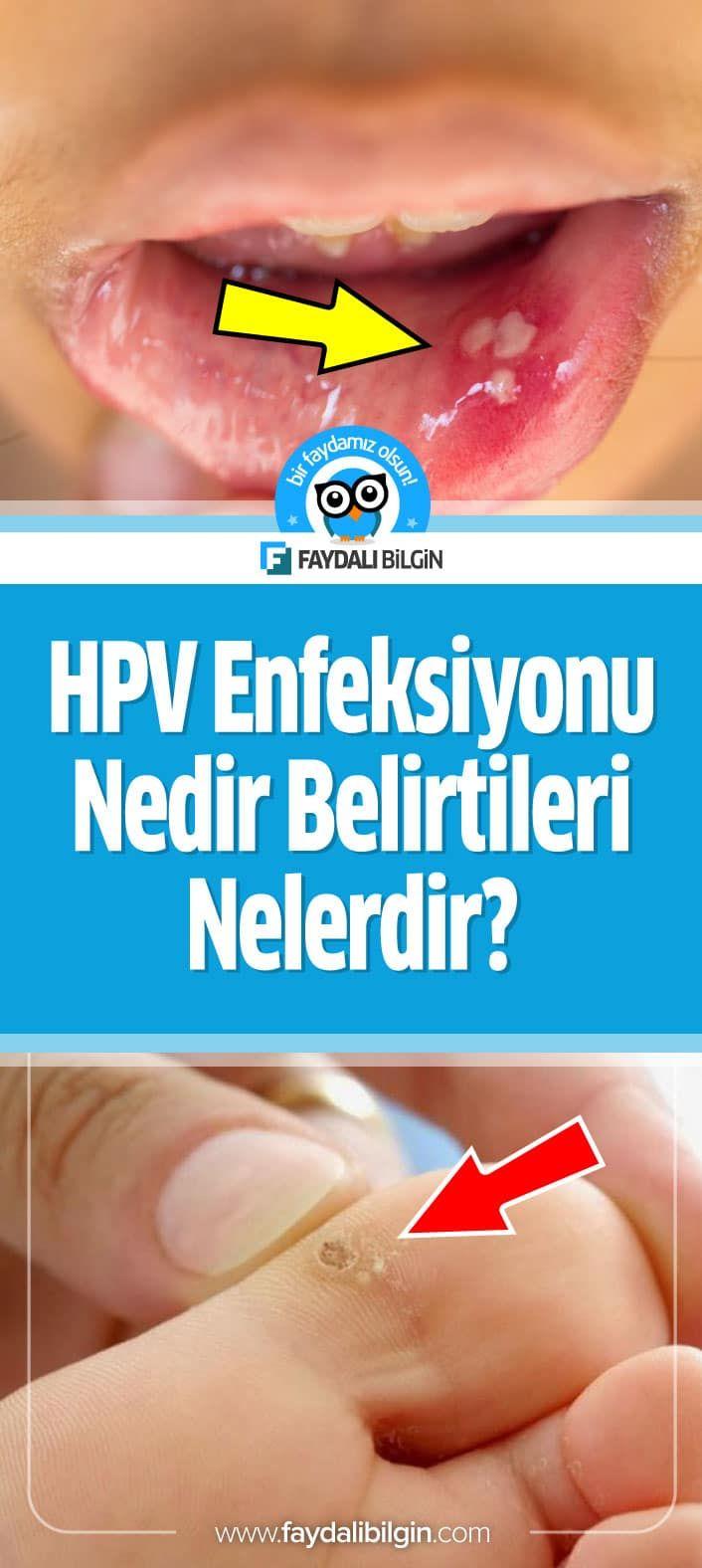 hpv virusu nedir nasil bulasir