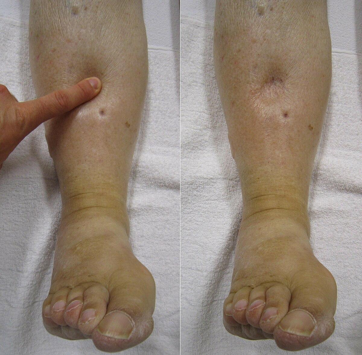 papiloame simple dermatita seboreica