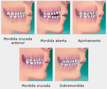 cancer bucal por brackets giardia tratament natural