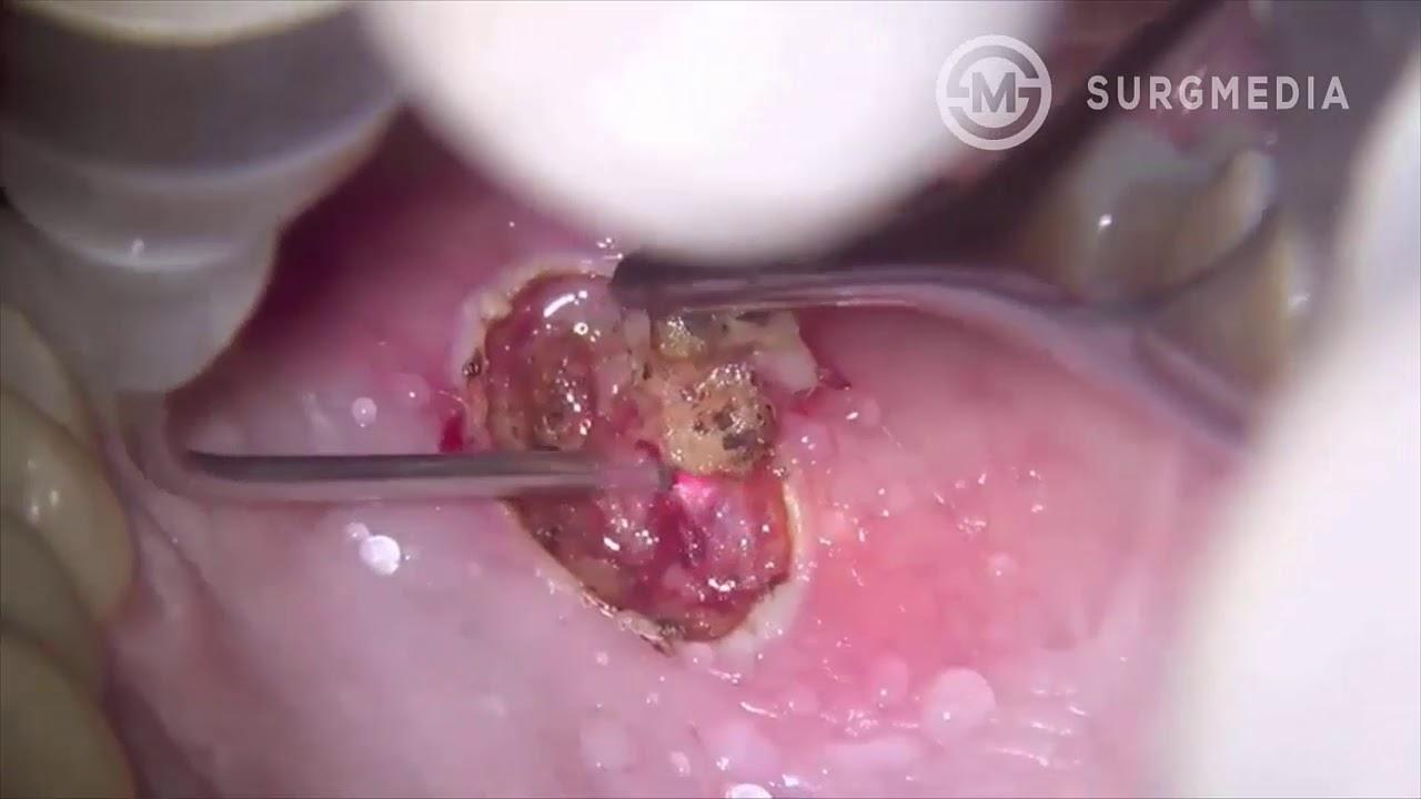 papilloma removal tongue