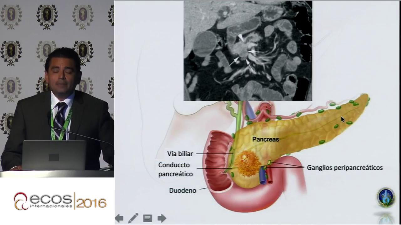 papilloma seno maligno preparate derivate din recenzii de paraziți
