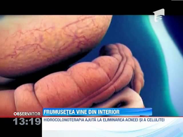 Dezintoxicarea prin Colon Hidroterapie - Dermahealth Timisoara