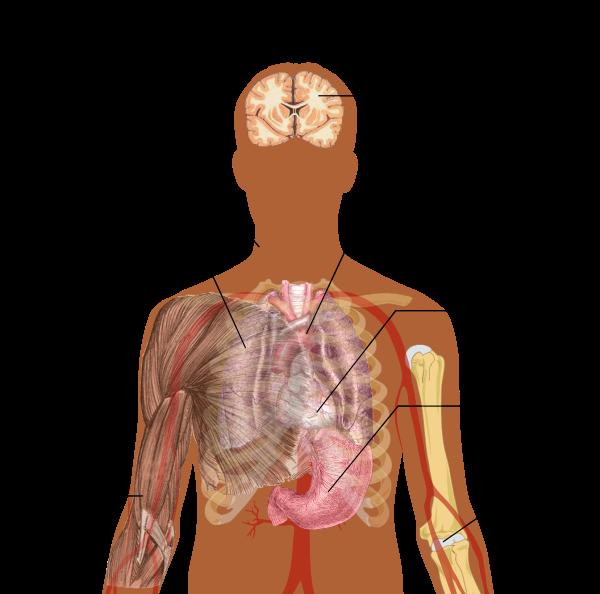 Cancerul de gât, greu de tratat în România Cancerul in gat la femei