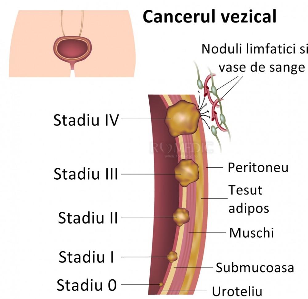 Ce trebuie sa stiti despre cancerul de vezica urinara - Farmacia Ta - Farmacia Ta