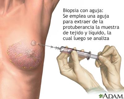 Que es papiloma de seno, cancer de colon on Tumblr