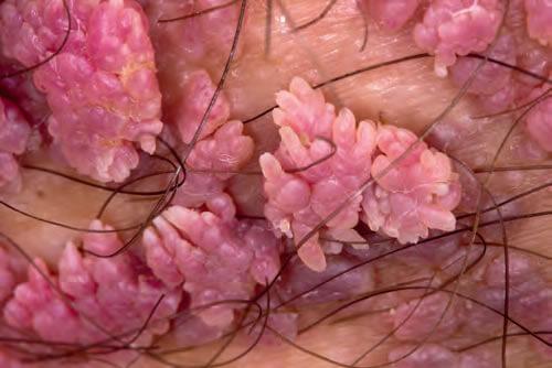 Crioterapia, metoda de tratament pentru veruci, cheratoze, papiloame   csrb.ro
