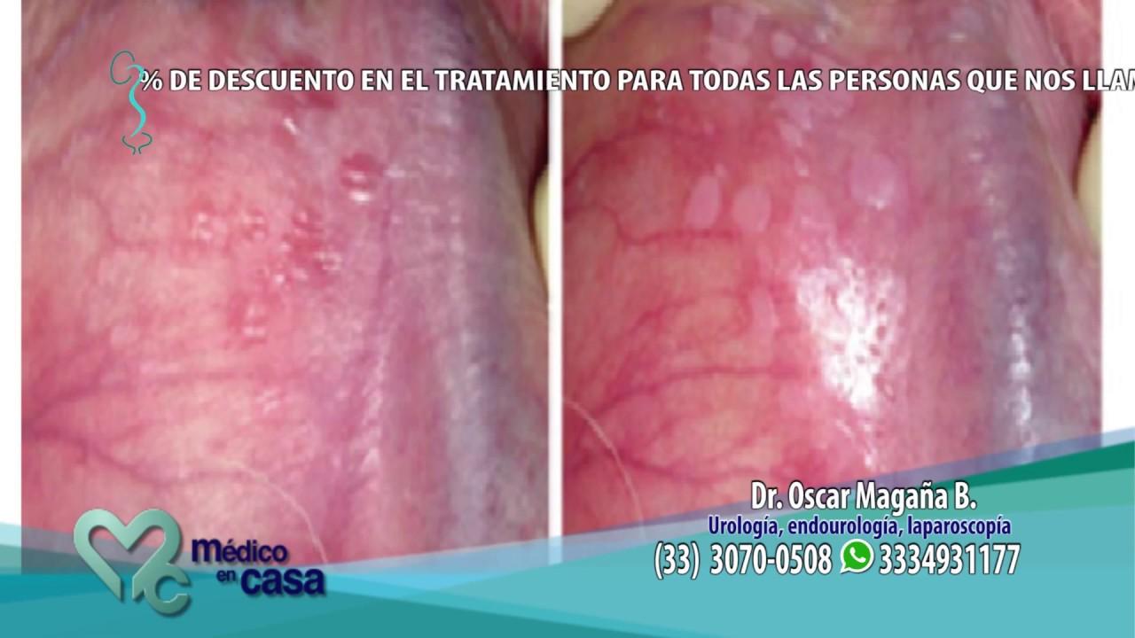 virus del papiloma tipos
