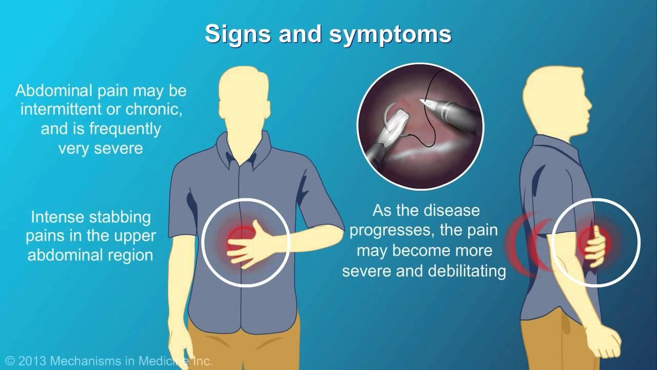 cauzele virusului papilomului uman pastile pentru tratamentul paraziților umani