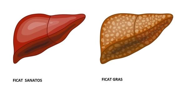 cura pentru ficat gras