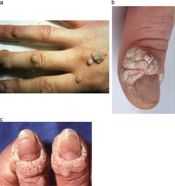 human papillomavirus infection meaning