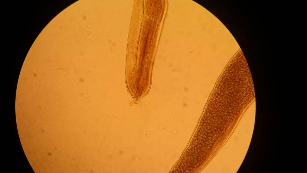 Instalație pentru tratarea venelor capilare Papiloma virus precio - Oxiuros vinagre manzana
