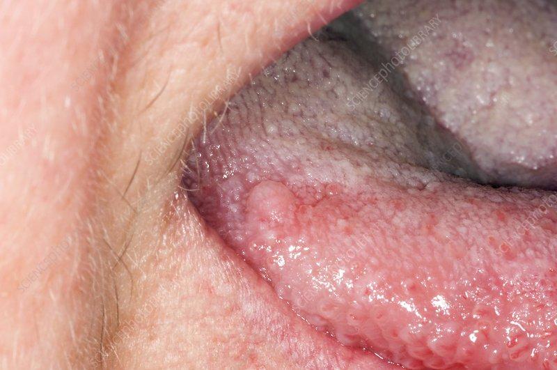 Benign wart on tongue