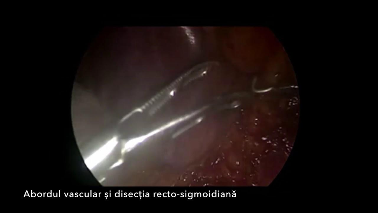 virus del papiloma una hpv high risk positiv und schwanger